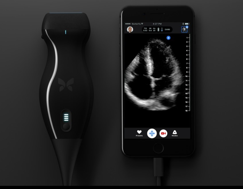 New-Device-Conduct-Ultrasound-With-Smartphone-biotech