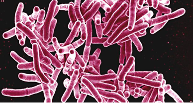 new-way-to-make-bacteria-glow-could-simplify-TB-screening