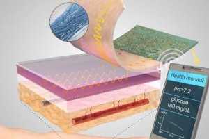 """""""Smart"""" thread that collects diagnostic data when sutured into tissue"""