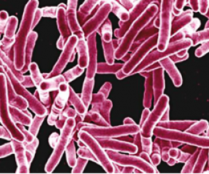New way to make bacteria glow could simplify TB screening