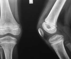 Replacement Joints with Antibiotics on Board Mean Lower Chance of Infection & Fewer Surgeries